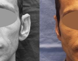 Otoplastie Urechi clapauge caz 2