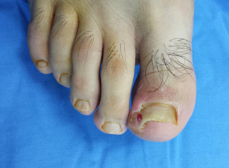 Tratament impitriva ciupercii unghiilor de la picior