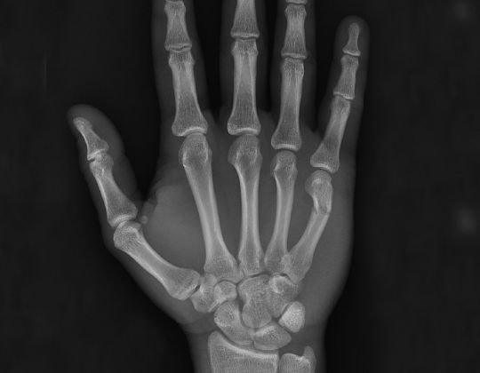 Patologie osteo articulara a mainii