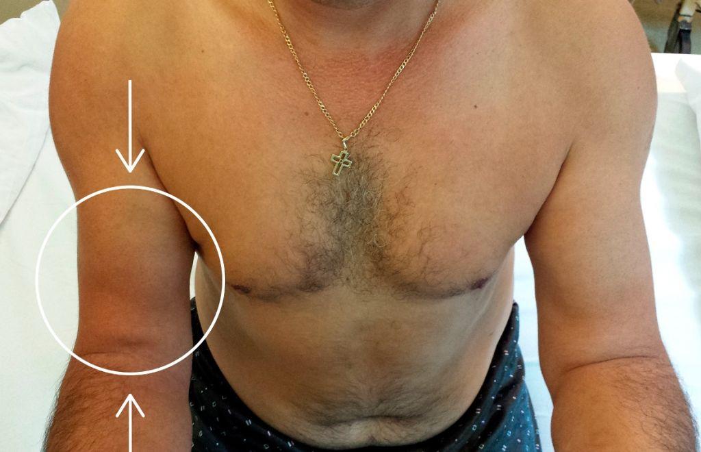 Ruptura de Muschi biceps brahial Tendon distal (1)