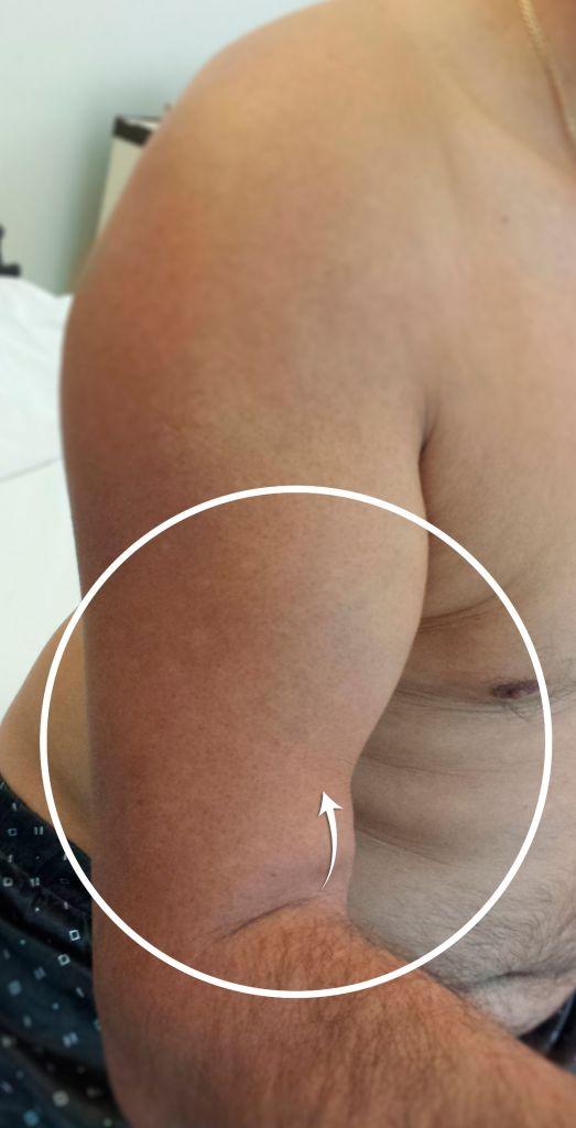 Ruptura de Muschi biceps brahial Tendon distal