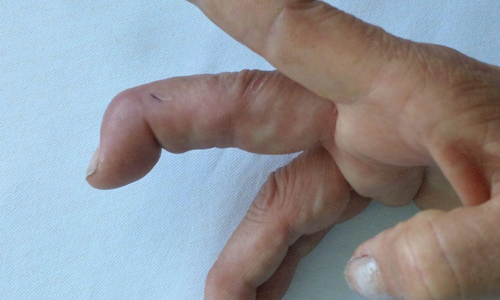Deget in ciocan cronic Mallet finger