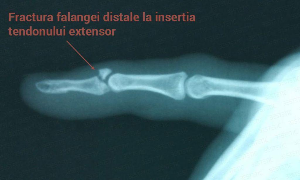 Deget in ciocan cu fractura (1)