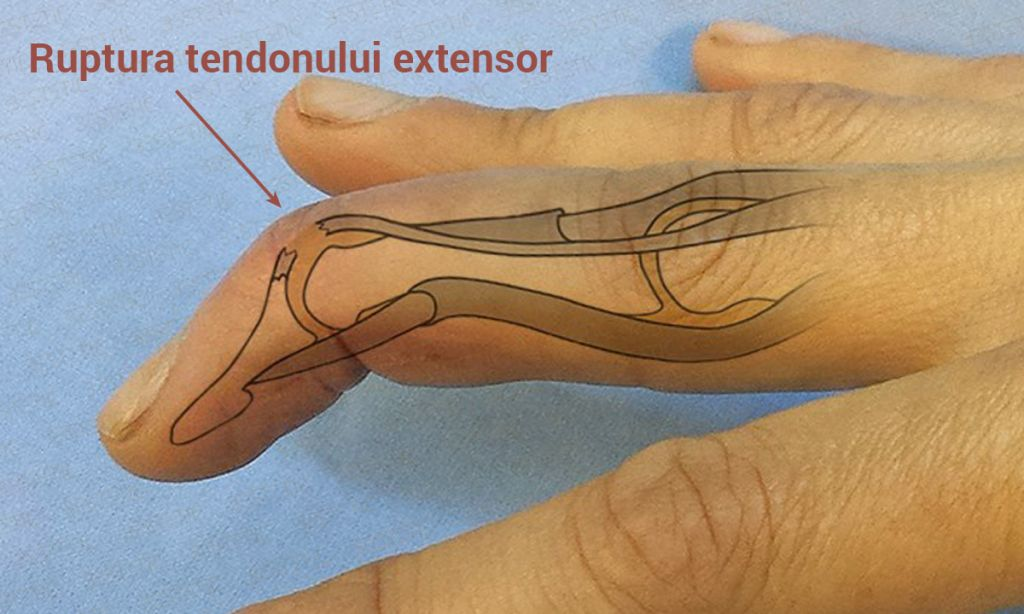Deget in ciocan cu ruptura tendon (2)