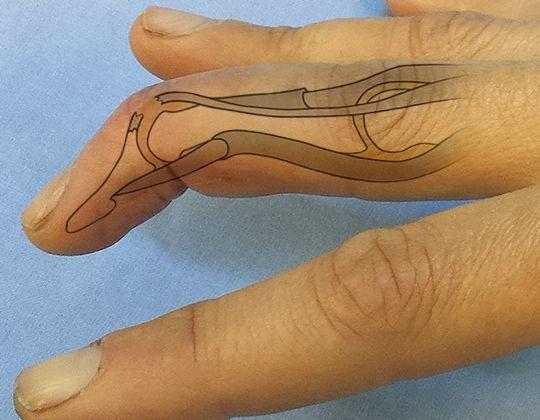 Deget in ciocan sau mallet finger