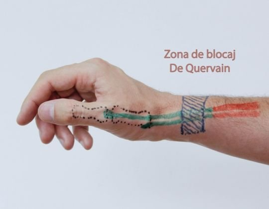Tenosinovita sau Maladia De Quervain
