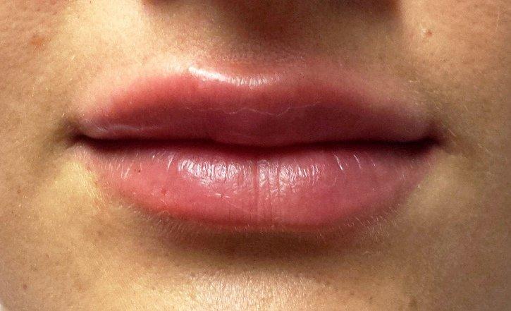Marirea buzelor dupa procedura
