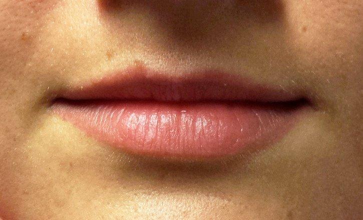 Marirea buzelor inainte de procedura