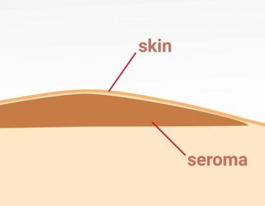 Seromul