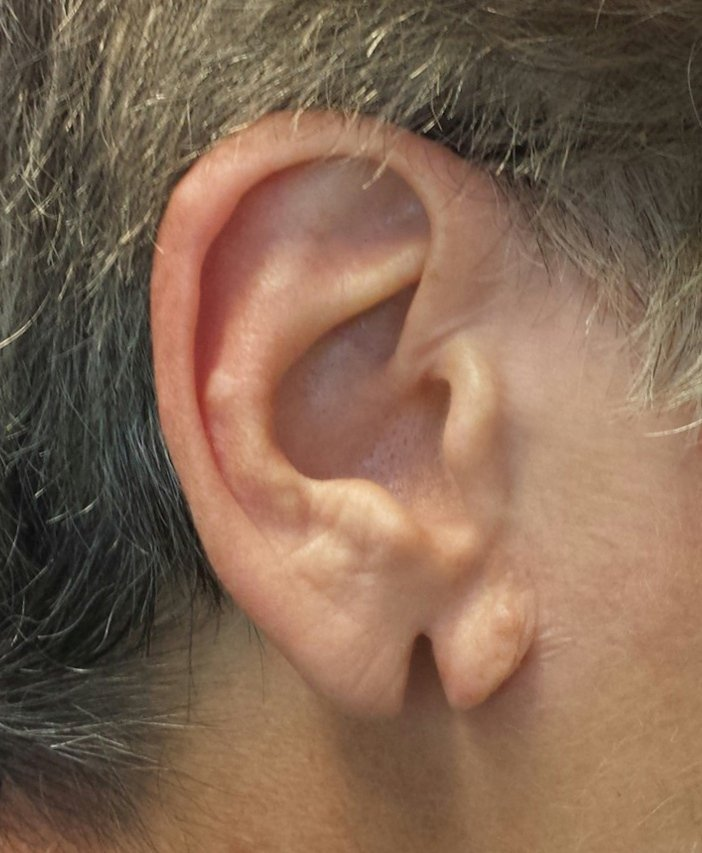 Lobul urechii despicat preoperator