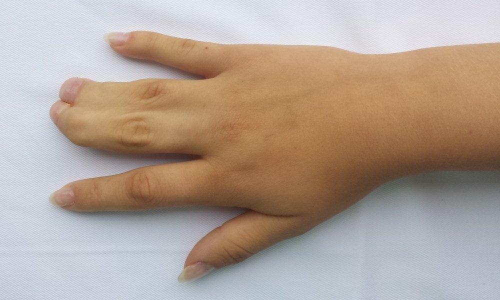 Sindactilia sau degete lipite
