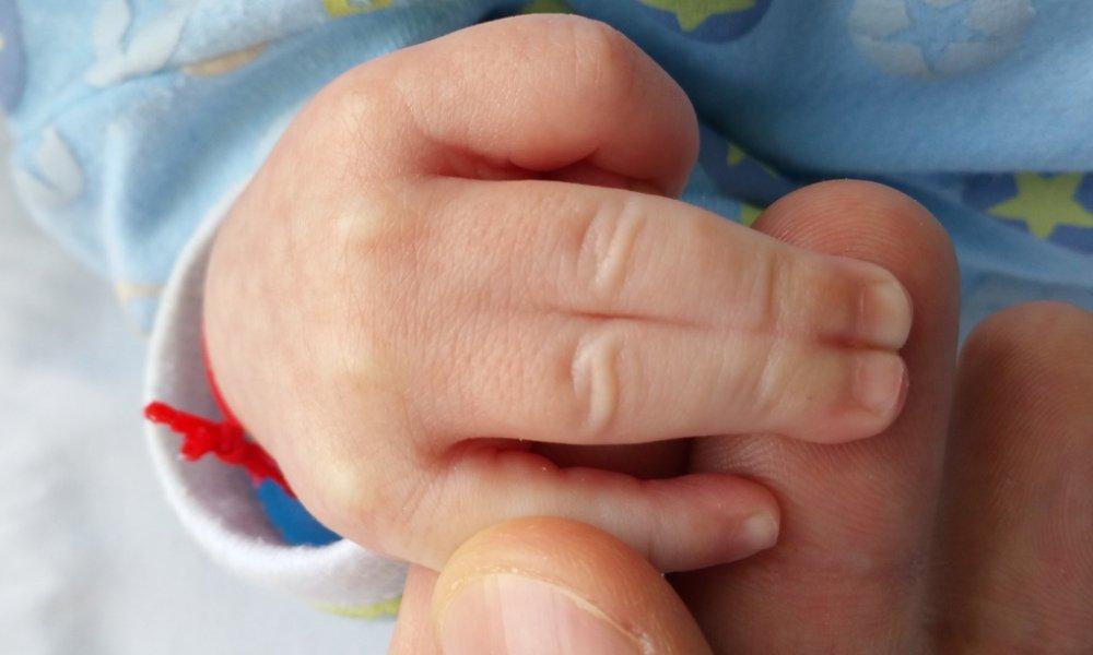 Sindactilie Completa Simpla la copil de 1 luna
