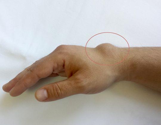 Chistul sinovial sau chistul incheieturii mainii