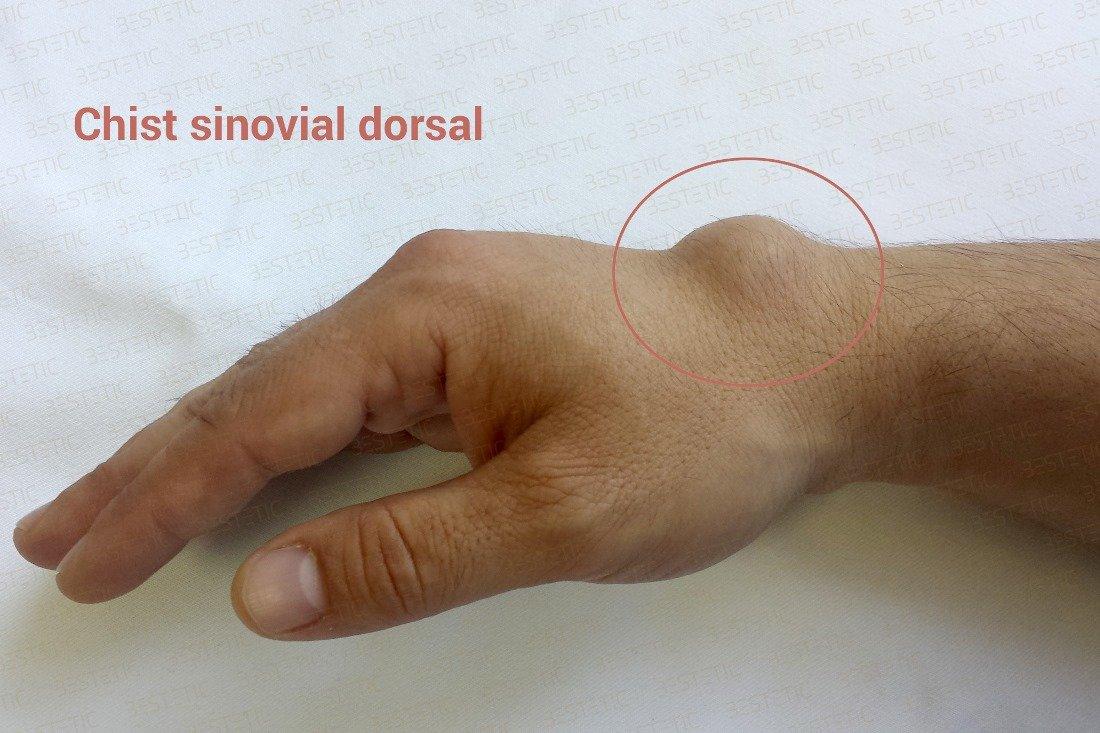 dacă articulația încheietura mâinii doare)