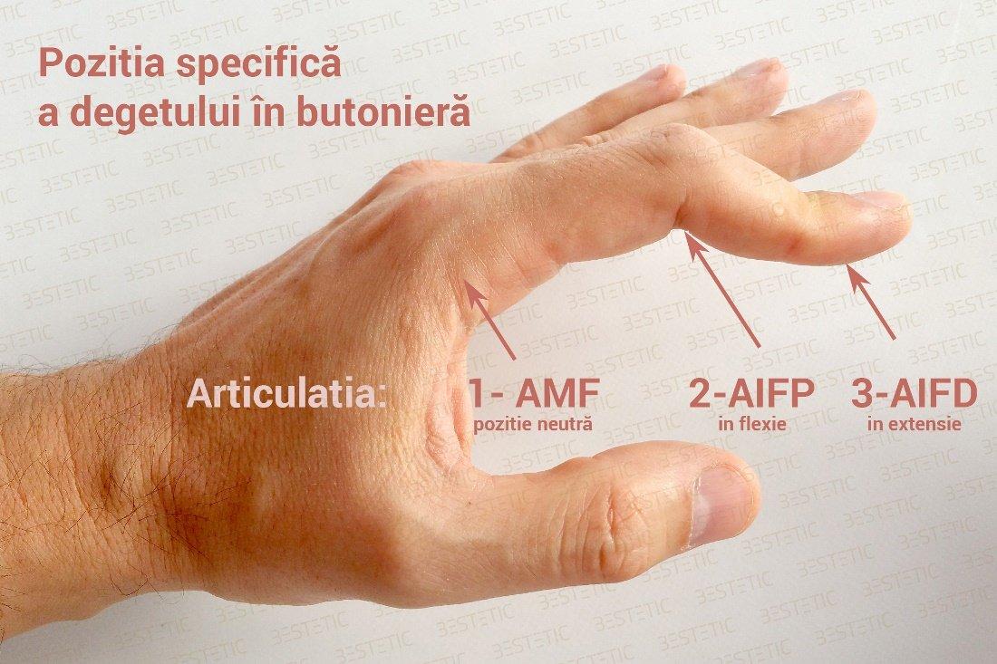articulația umflată pe deget