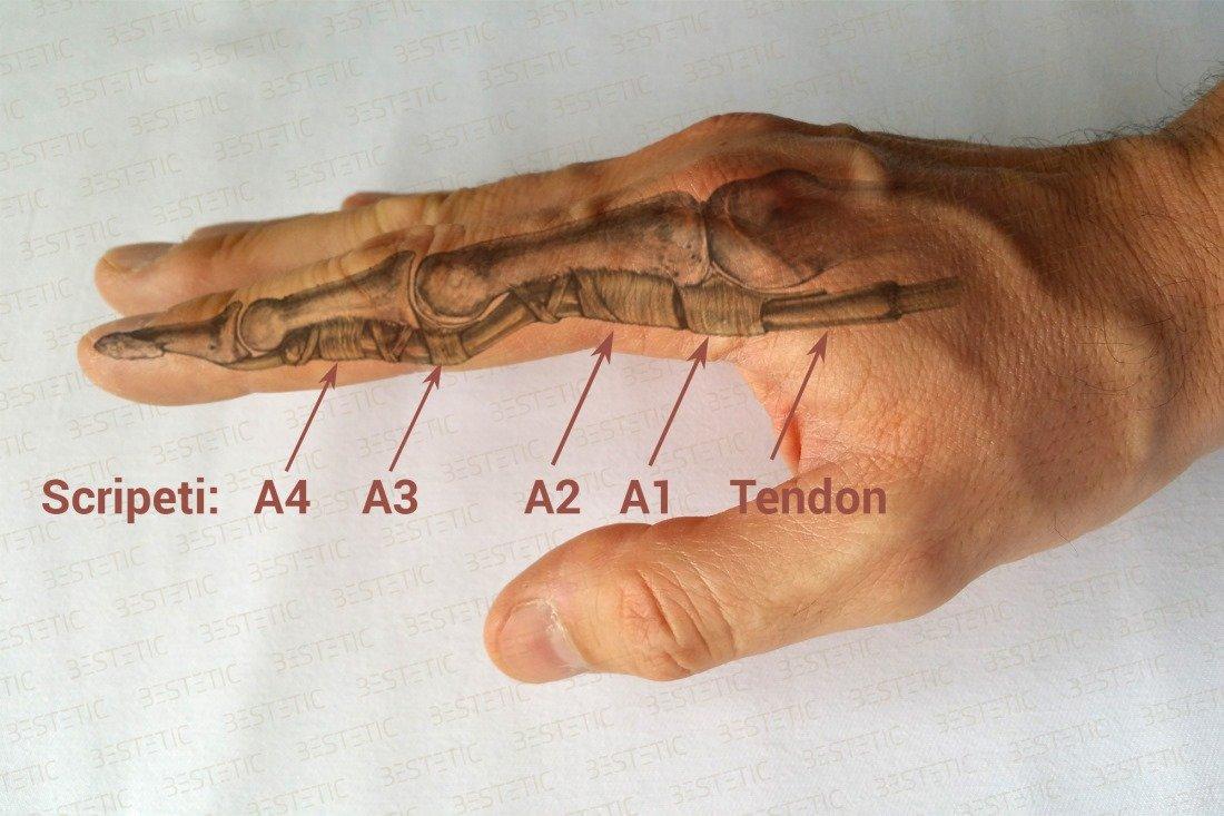 Artrita reumatoida police
