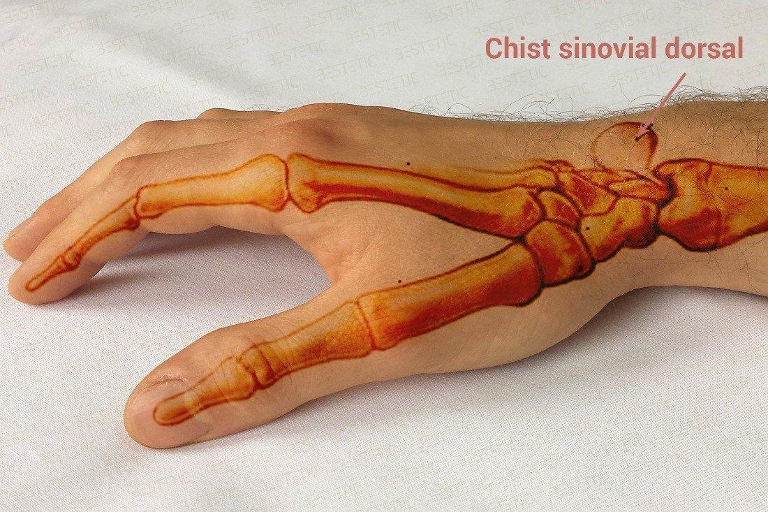 cum să restabiliți articulația degetelor după o accidentare dureri articulare din prednison