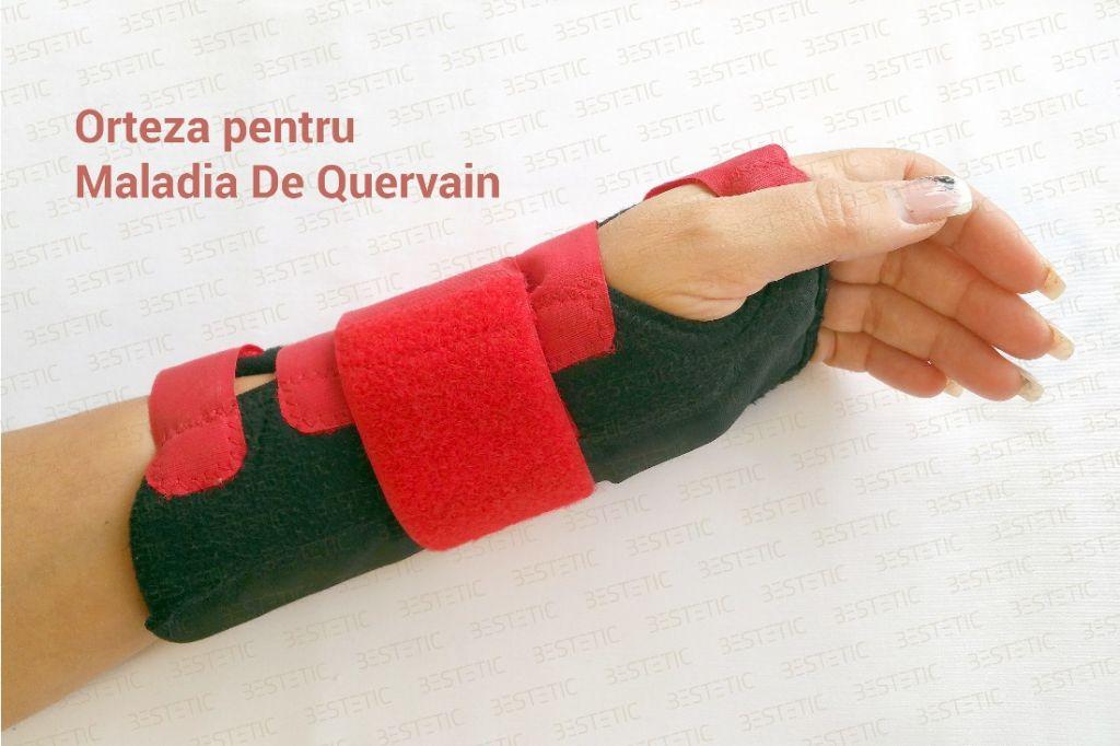 Orteza mana Maladia De Quervain