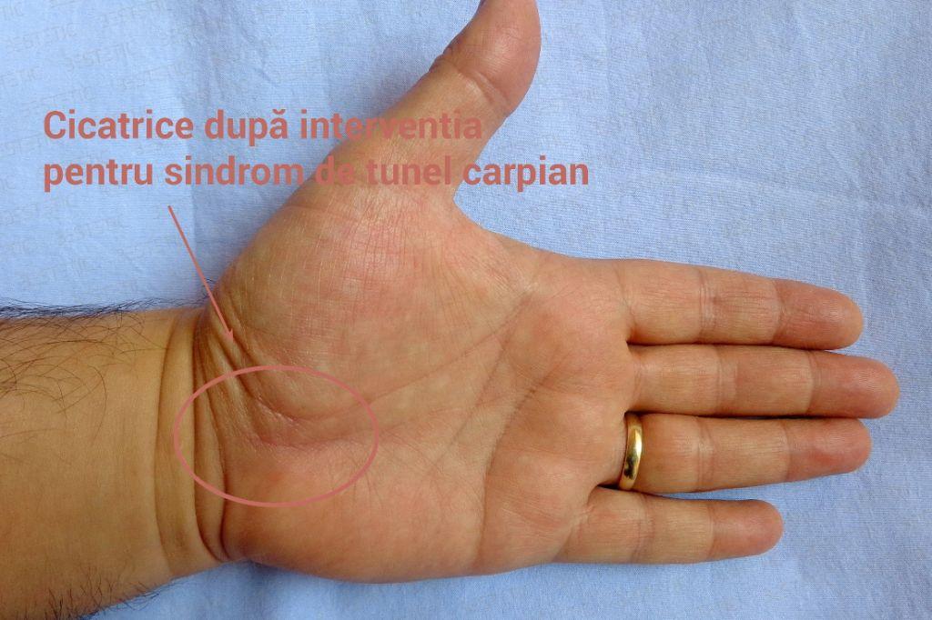 Sindrom de tunel carpian