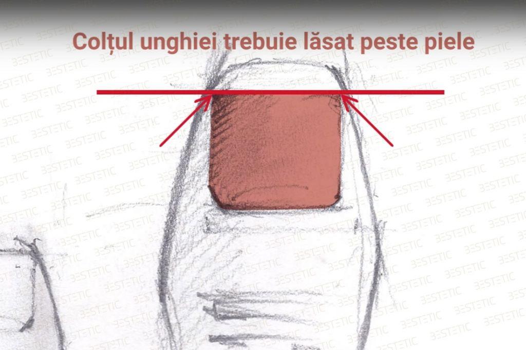 Unghia incarnata Pedichiura corecta