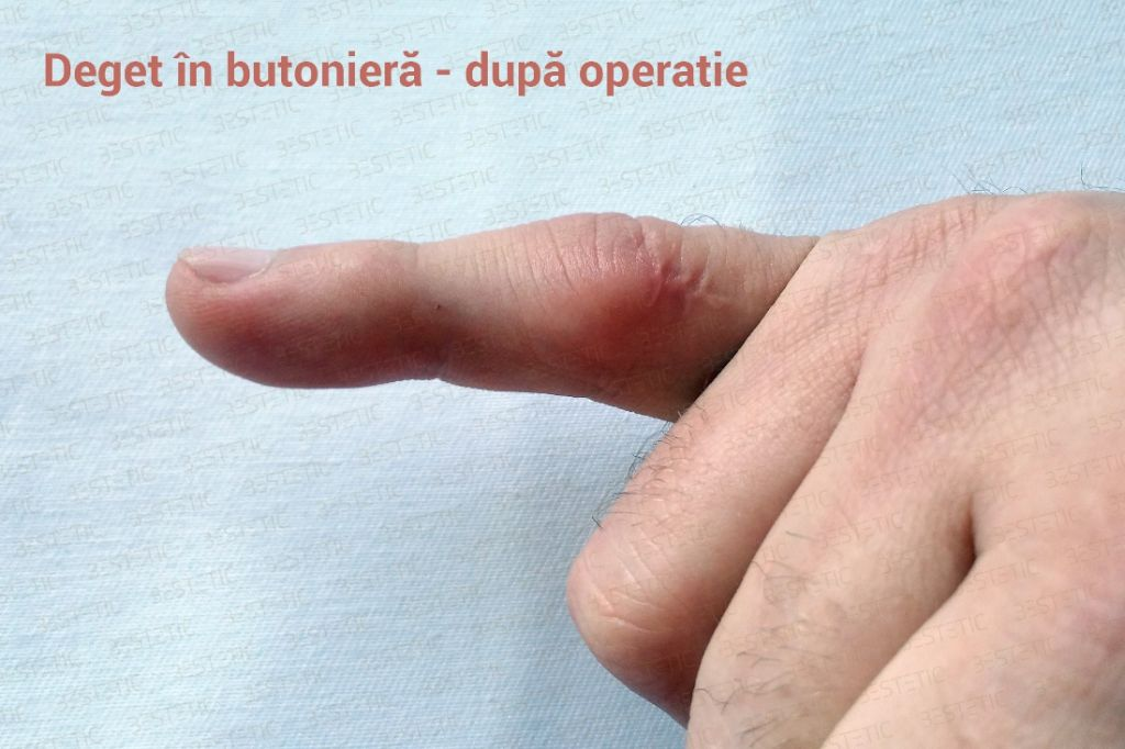 Deget in butoniera - dupa operatie