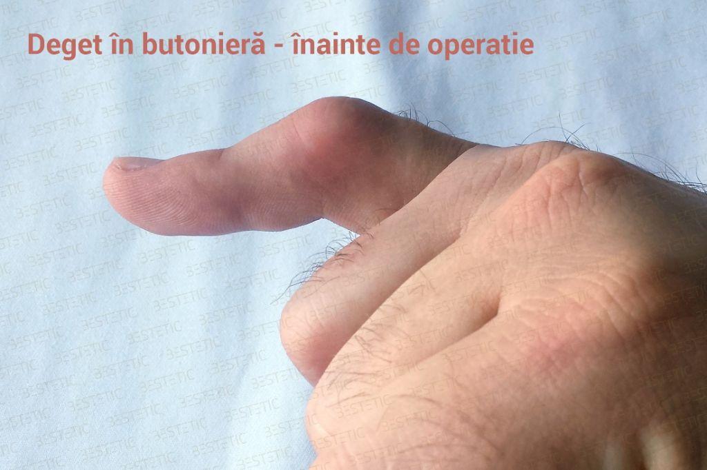 Deget in butoniera inainte de operatie