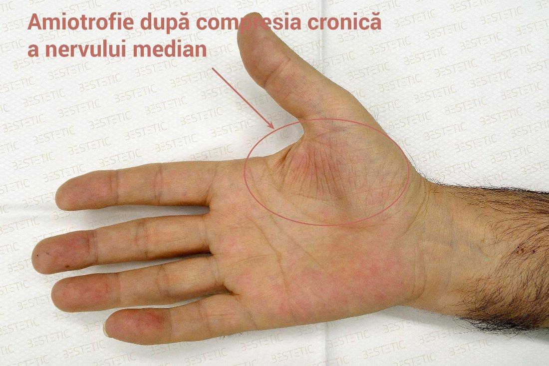 unguent din articulații amorțit mâini