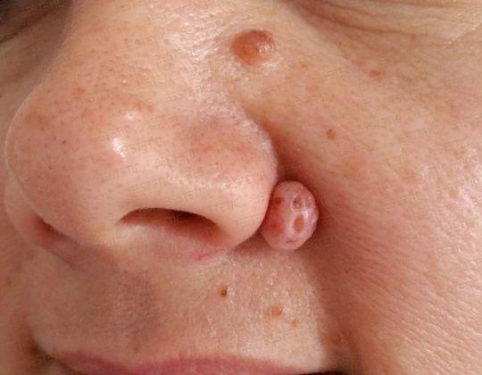 Alunite sau nevi pigmentari
