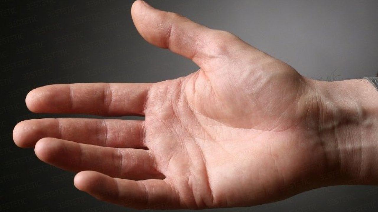 Degetul mic de la mana umflat