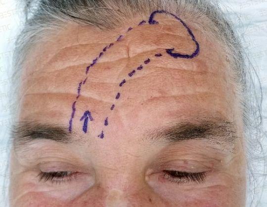 Lamboul frontal