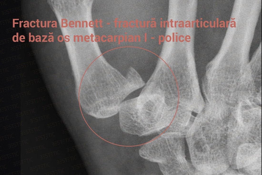 articulațiile rănesc după fracturarea mâinii