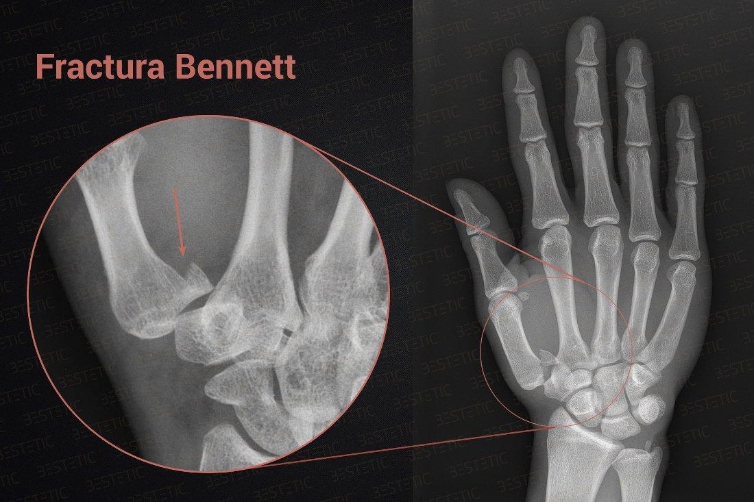 Gel de ritanat pentru articulații, Articulațiile rănesc după fracturarea mâinii