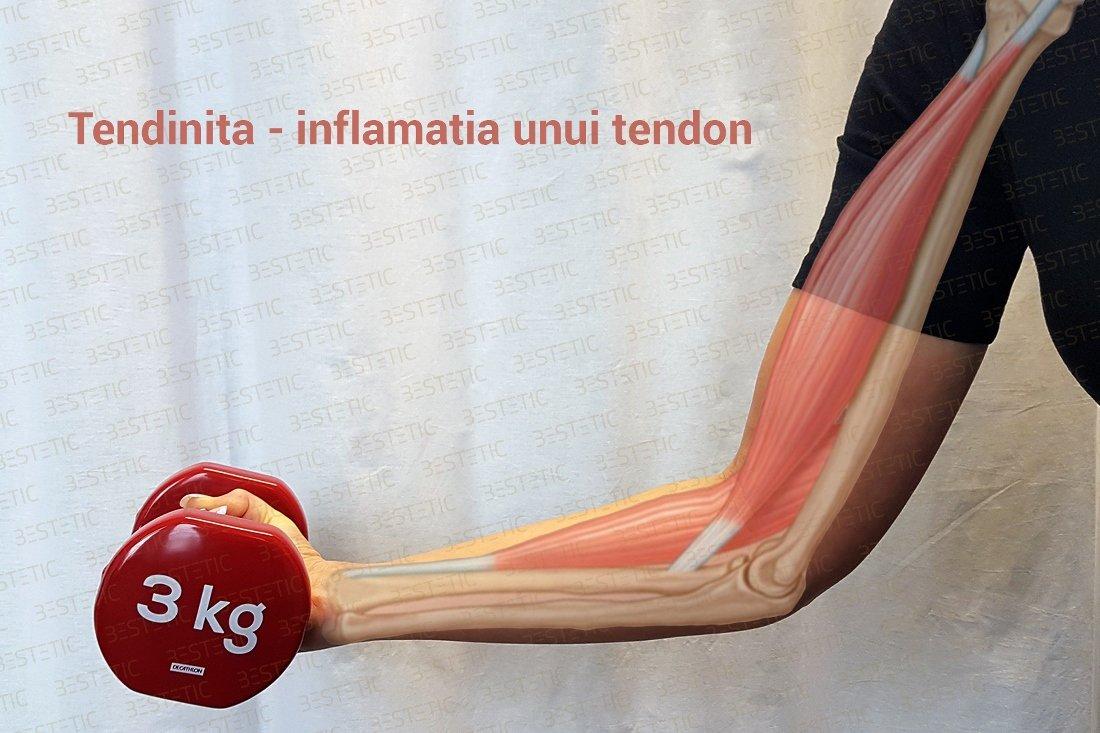 durere de tendon