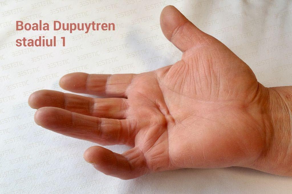 Maladia Dupuytren boala cauze operatie
