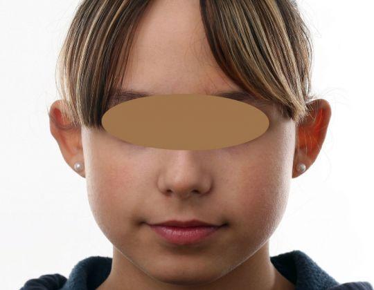 Otoplastie pentru urechi clapauge sau decolate