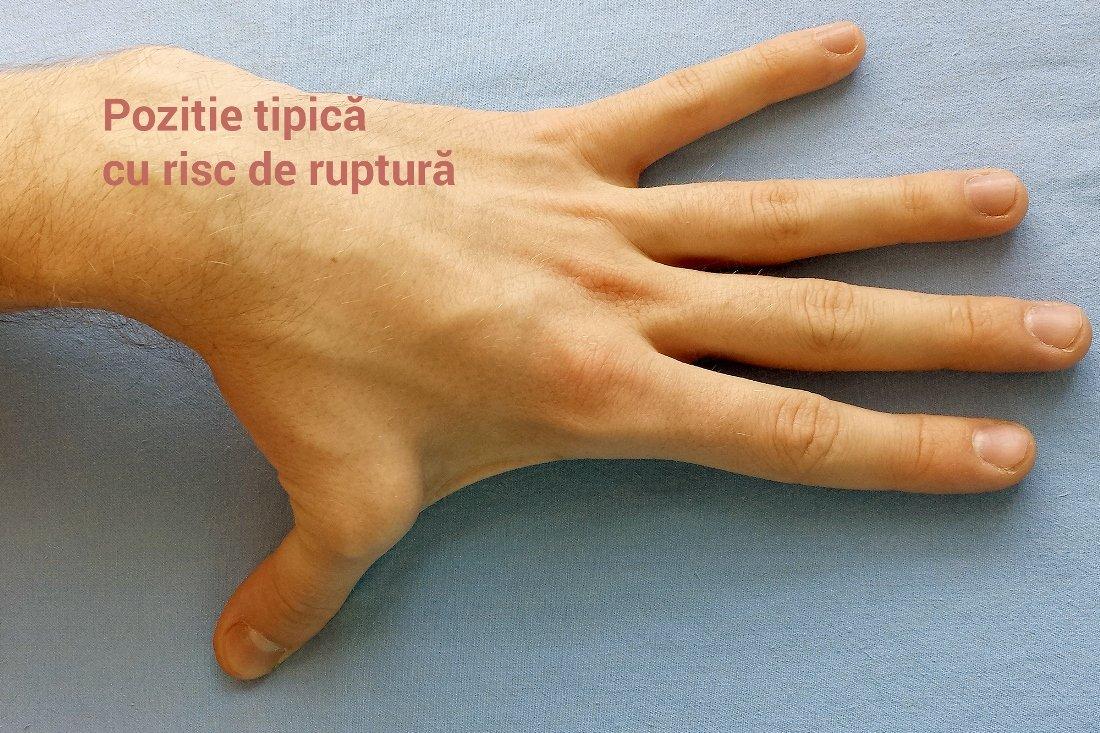 tratament de ruptură a ligamentului articulației degetelor)