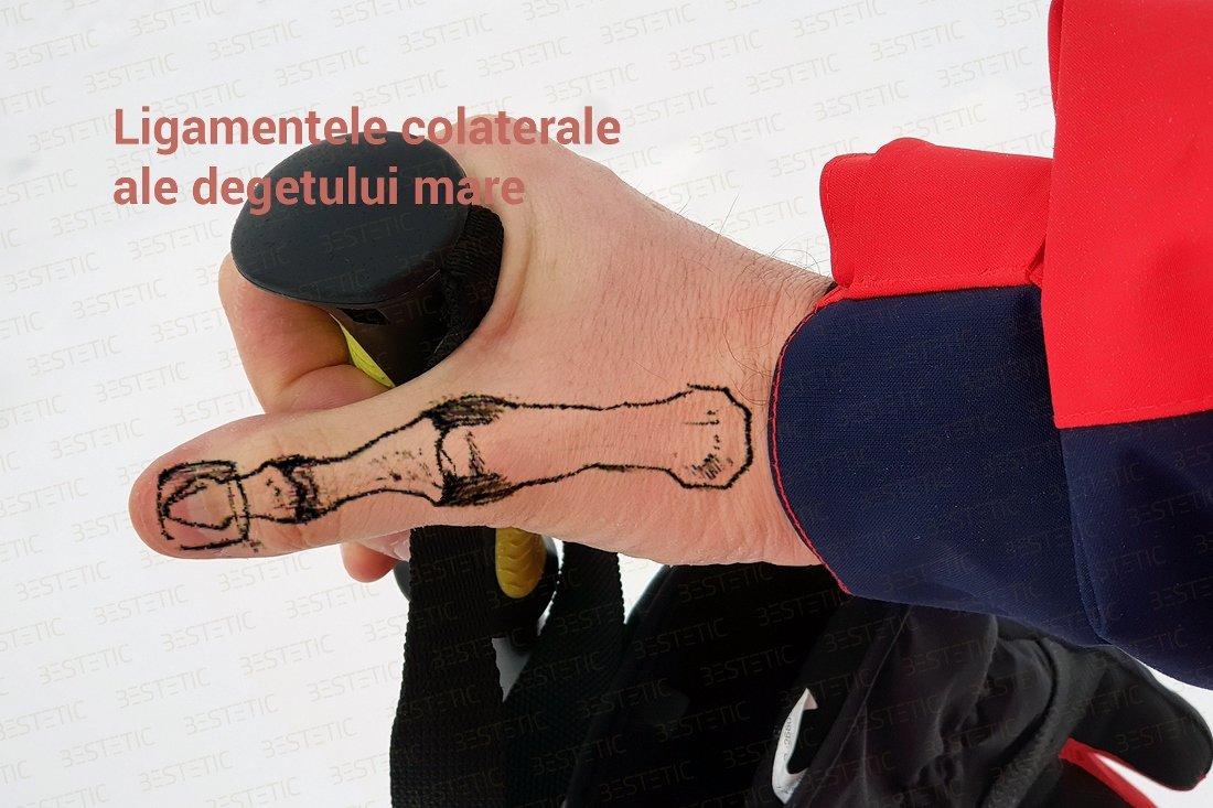 dimexid în tratamentul articulațiilor toate articulațiile se crispa și se rănesc