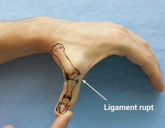 Ruptura de ligament colateral ulnar al policelui
