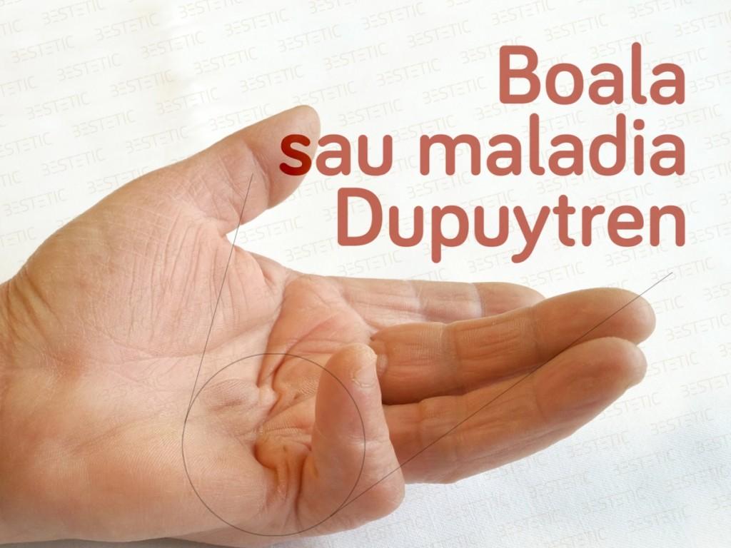 Xiapex fara operatie in Boala Dupuytren