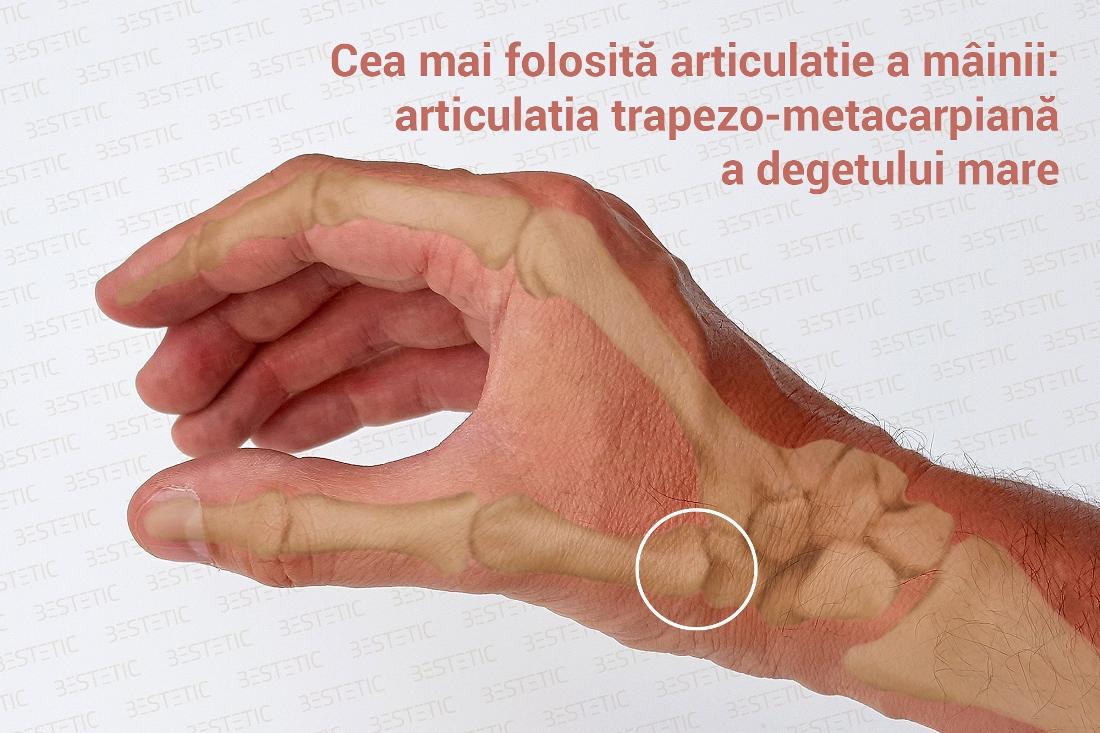 artrita tratamentul mâinilor denivelări apoase rănesc articulațiile