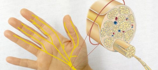Despre nerv – leziune de nerv si neuropatia periferica