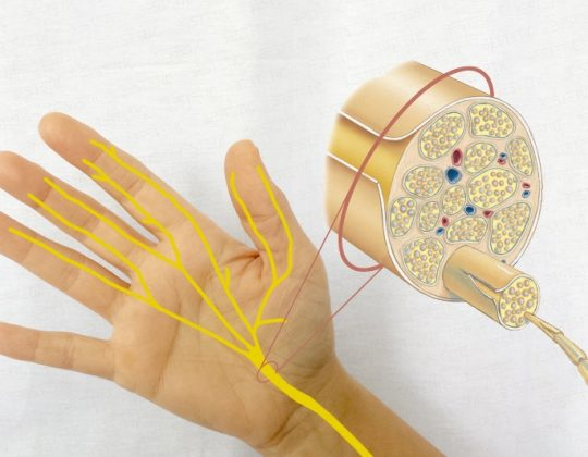 Despre nerv - leziune de nerv si neuropatia periferica