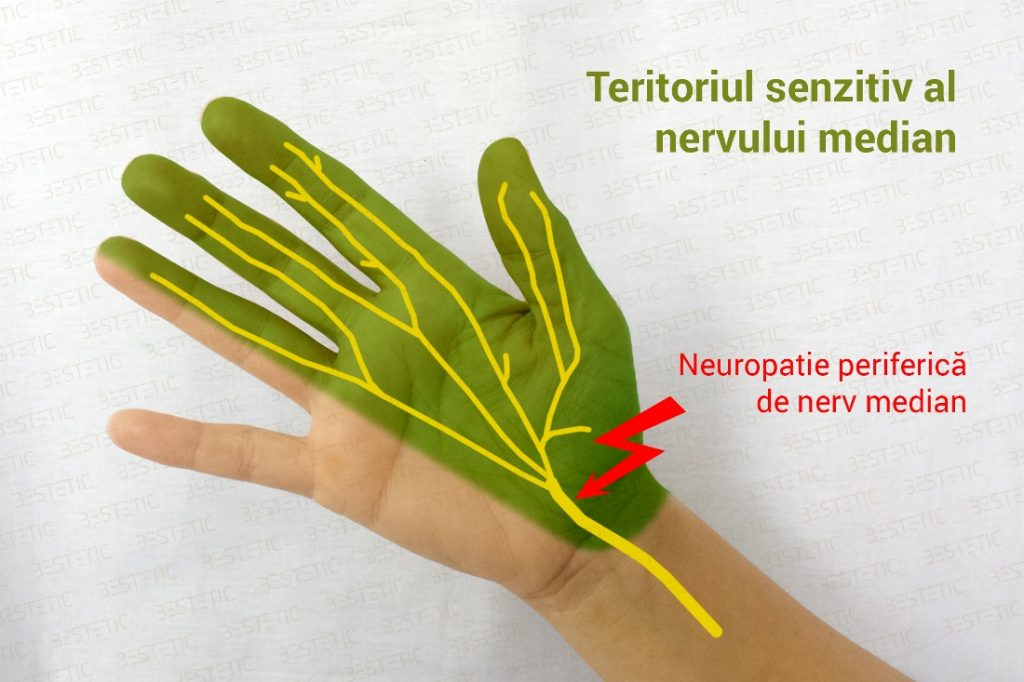 nerv median - neuropatie
