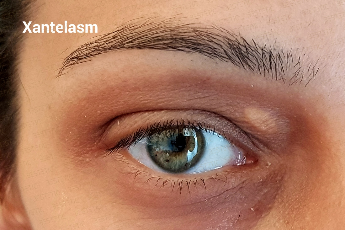 Cum să îndepărtezi punctele de grăsime din jurul ochilor