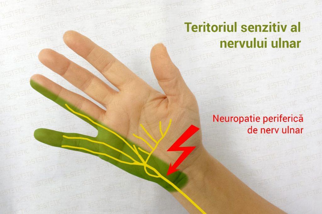 nerv ulnar - neuropatie