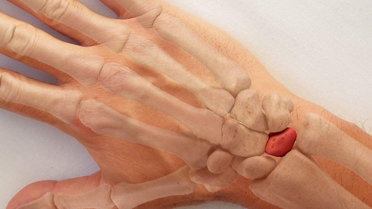 dureri carpiene dacă articulația cu gantere doare