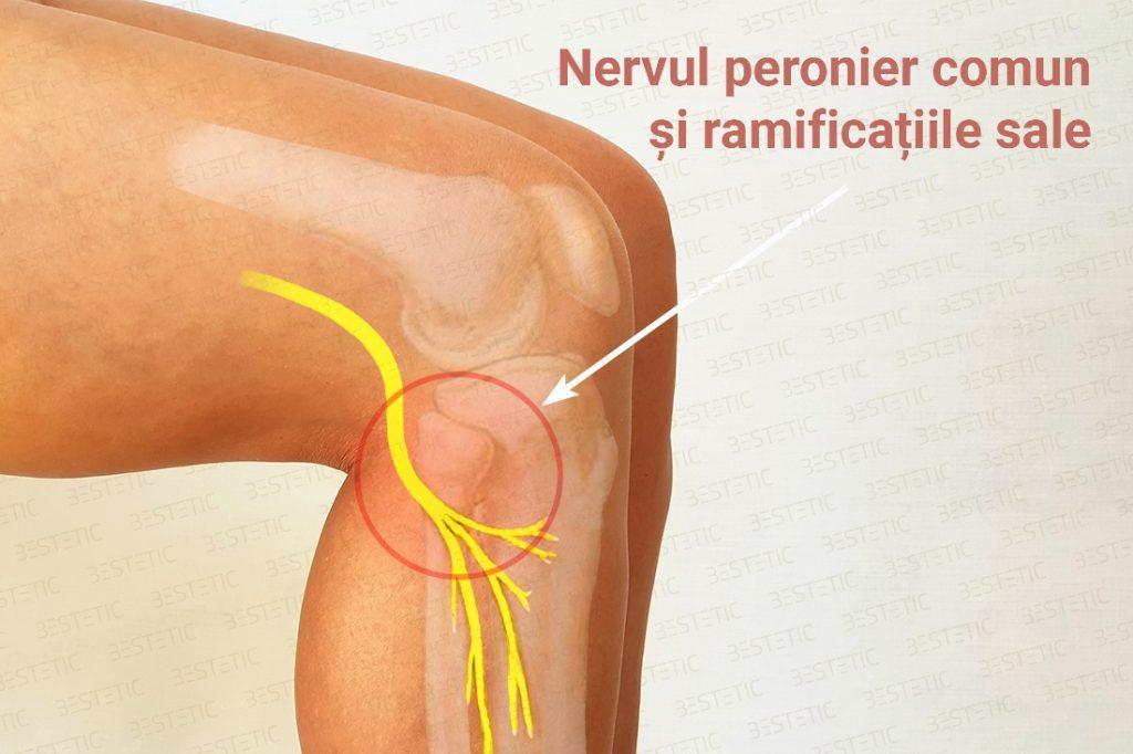 nerv peronier comun la capul fibulei
