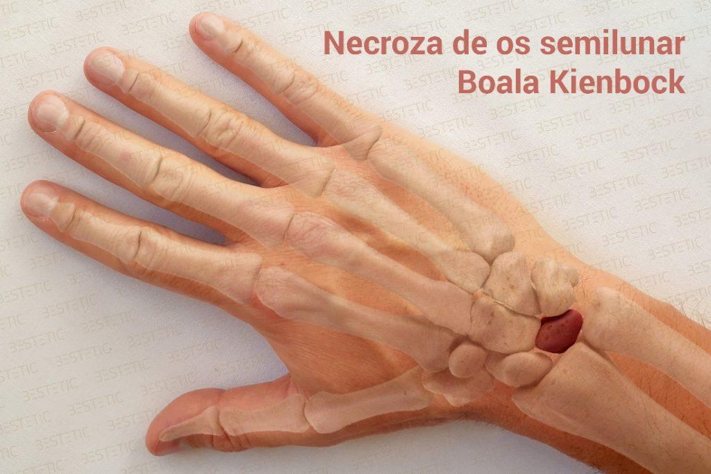 Boala Kienbock disease