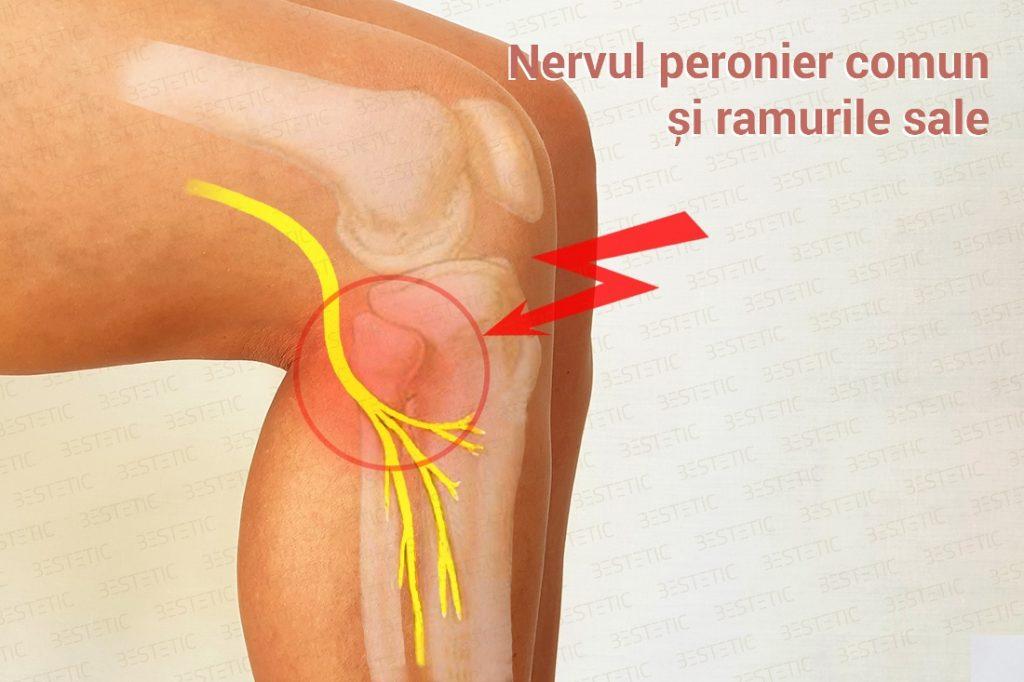 nerv peronier comun