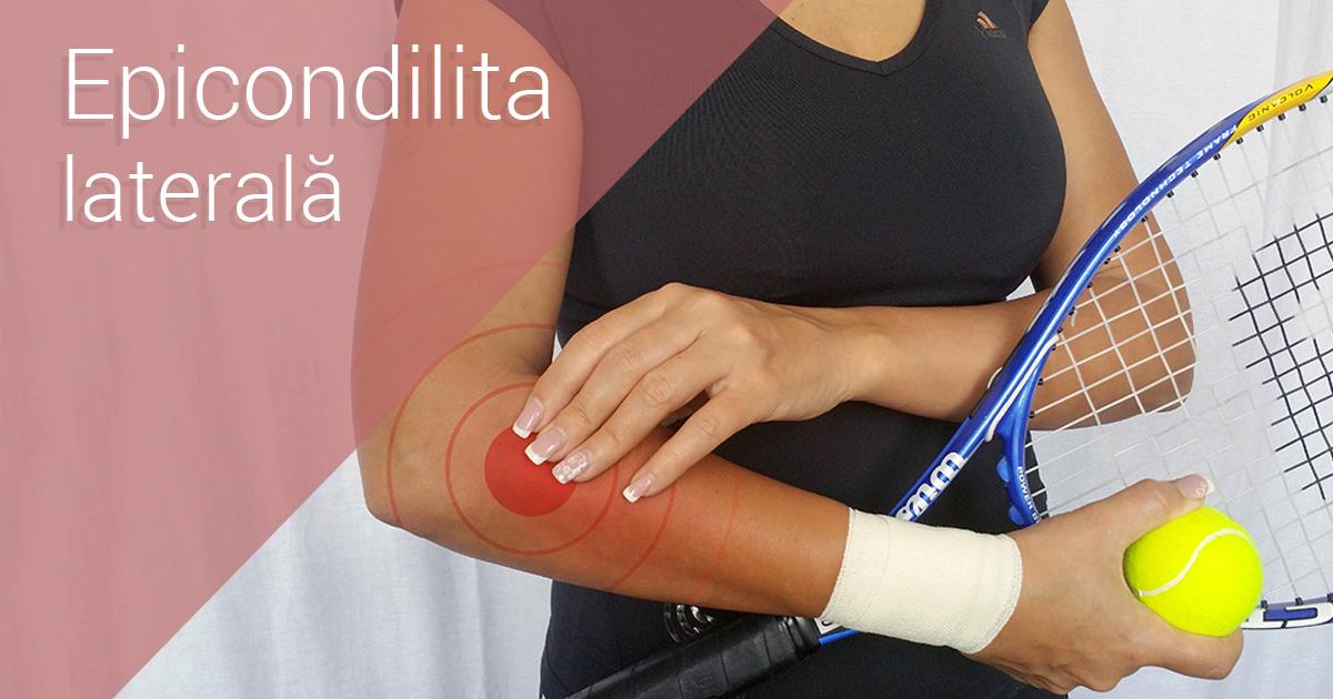 cum se tratează epicondilita cotului durere la nivelul articulațiilor cotului și genunchiului